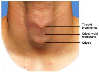Html View Of The File Cricothyroidotomy Needle Cricithyotomy