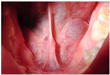 sublingual salivary gland excision